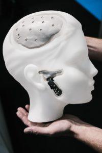 3D print medical / Zorgsector 2